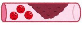 血管イメージ
